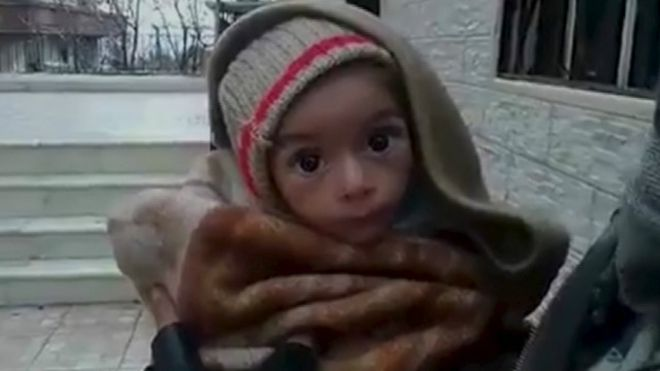 Help Starving Children in Syria